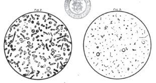 Lactic Acid - Microscopic beer samples